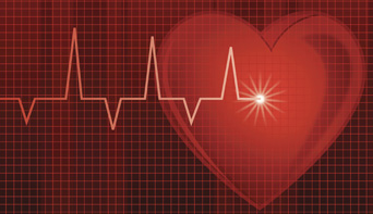 Cardiac monitoring graphic